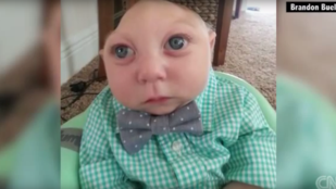 A koponyája és az agya nagy része nélkül született, heteket adtak neki, már egyéves