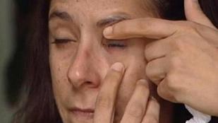 Ez a nő pillanatragasztót kapott a szemcsepp helyett, és összetapadt a szemhéja