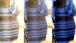 Megvan, mi történt A ruhát fehér-aranynak látók agyában