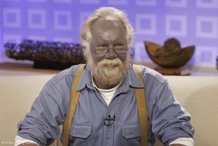 Az ezüstkolloid túlzott használata után kékké változott Paul Karason.