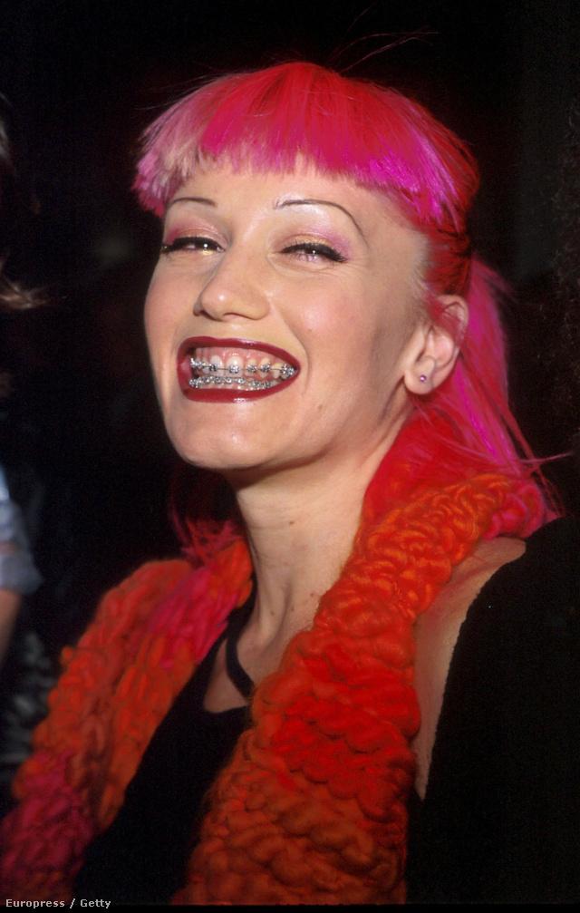 Rózsaszín frufrus frizura és fogszabályzó 1999 decemberében.