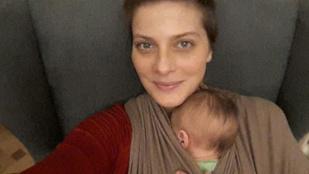 Tatár Csilla a hormonális bebarnulás csapdájába esett