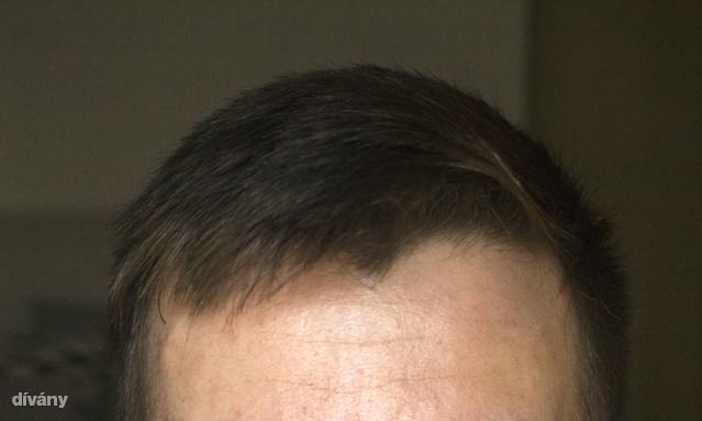 Így néz ki a hajam alapból. Nem egy matyóhímzés, de waxszal elmegy.