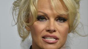 Érdekes felfedezésekre jut, aki közelről nézi Pamela Anderson arcát