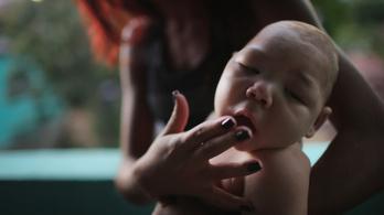 Magzati halált, agyszövetpusztulást is okozhat a zikavírus