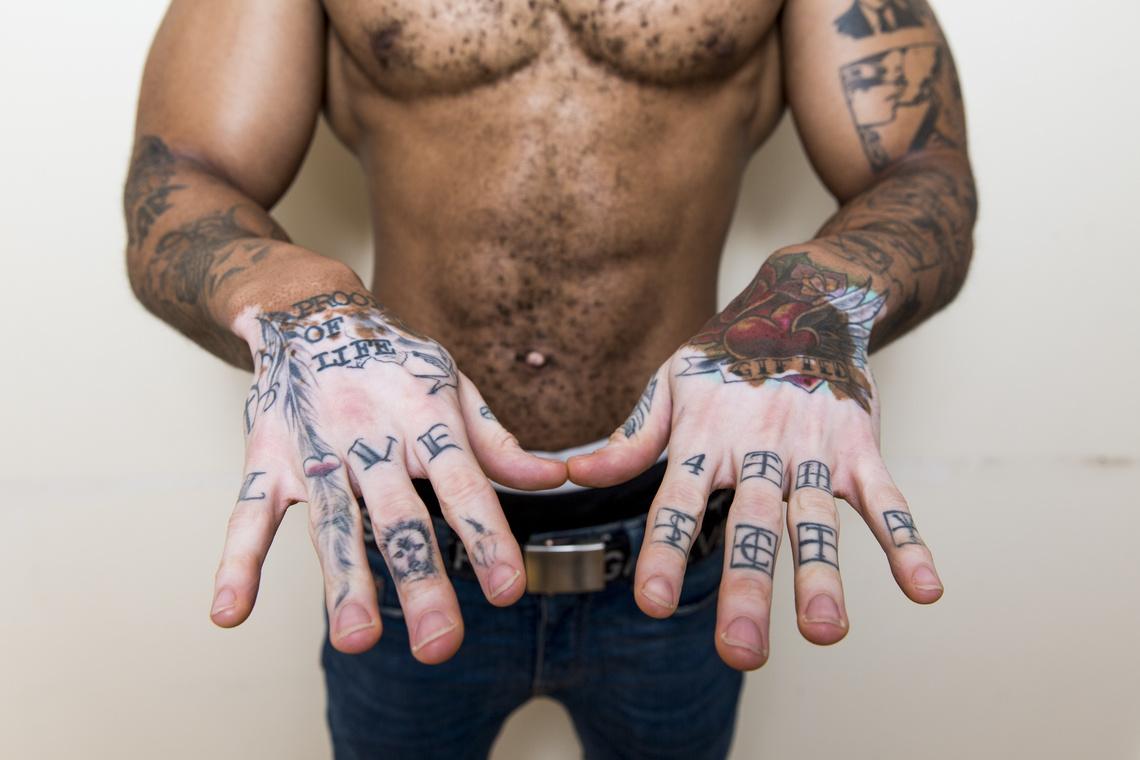 tk3s bm vitiligo hunk 02453826