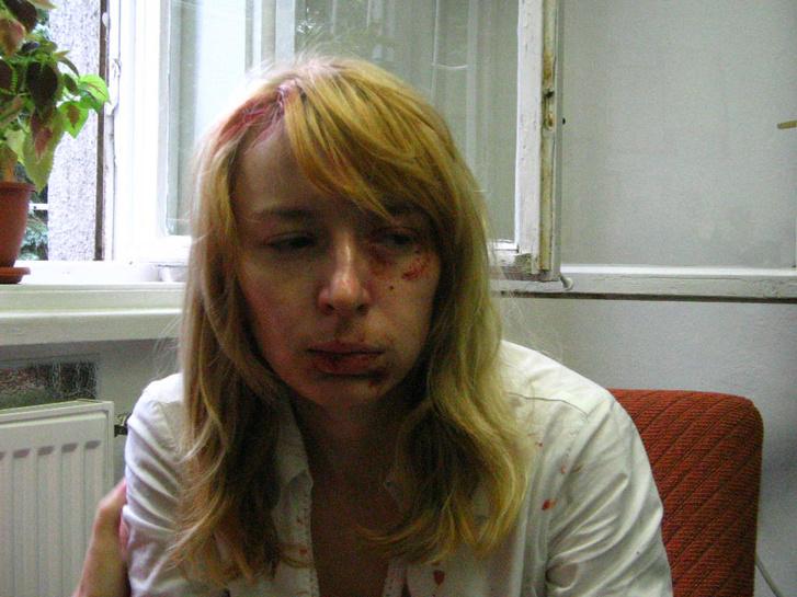 A pozsonyi Új Szó című lap felvételén MALINA Hedvig nyitrai magyar diáklány látható 2006. augusztus 25-én, közvetlenül az incidens után a nyitrai egyetemen.