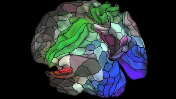 Száz új régiót találtak az emberi agyban