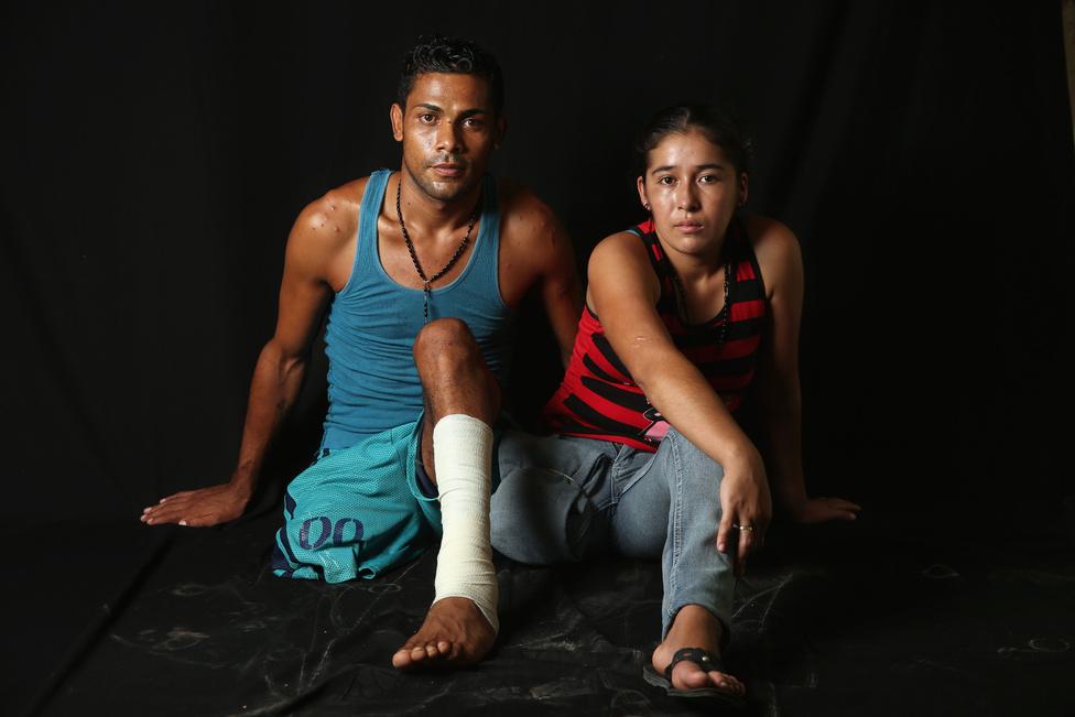A legtöbb illegális bevándorló a szegény latin-amerikai országokból, vagy az Egyesült Államok külterületeiről (Puerto Rico, Guam stb.) érkezik. A vezető migránskibocsátó országok 2015-ig Mexikó, Guatemala, El Salvador és Honduras voltak. Utóbbiból érkezett a 23 éves Eduardo Contreras és a 22 éves Elvira Lopez. Mind a ketten egy tehervonaton próbáltak az Egyesült Államokba jutni, de mind a ketten a szerelvény alá estek és elveszítették egy-egy lábukat.