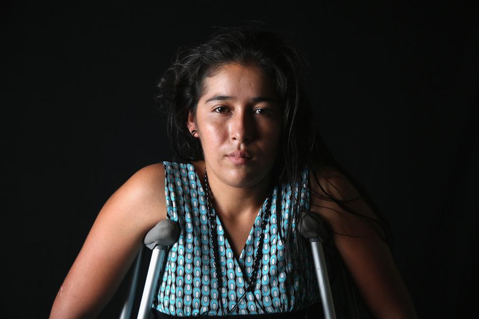 A 22 éves Elvira Lopez hat hónapot várakozott a tapachulai menekülttáborban, Mexikóban. Azután került ide, hogy egy tehervonatra kapaszkodva próbált bejutni az Egyesült Államokba, de egy ág lelökte és elveszítette a jobb lábát. A Jézus, a jó pásztor menekültszálláson most egy művégtagot próbálnak szerezni a számára. Az USA és Mexikó határán 3200 kilométer hosszú határán nincs mindenhol fal vagy kerítés, mindössze 930 kilométeres szakaszon van műszaki zár. Mégis kevesen próbálnak meg átfutni a zöldhatáron, sokan szöknek be tehervonatokon. A sok baleset miatt ezeket la bestia néven emlegetik.