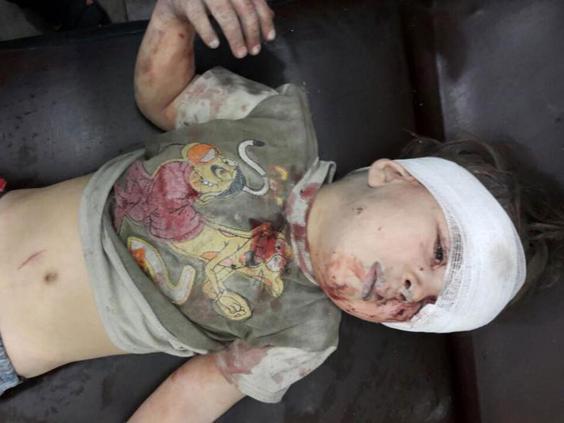 Omran, miután bekötözték a fejét a kórházban.