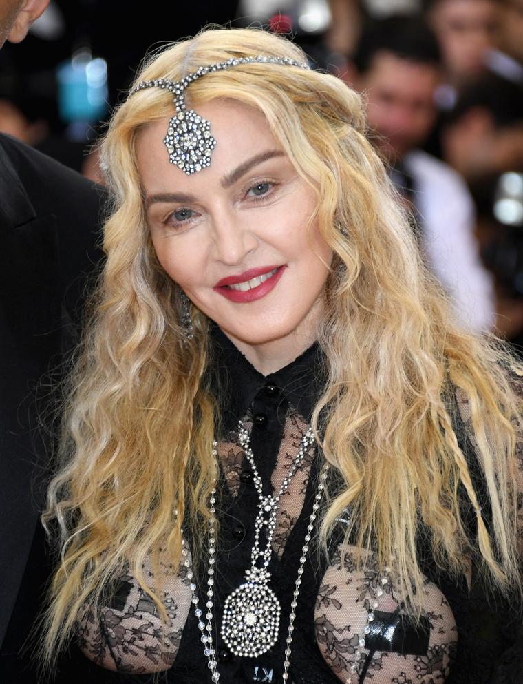 Madonnának ilyen világoskék szemei lennének?