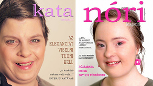 Relatív Szépség projekt: címlaplányokat értelmi sérült nőkből