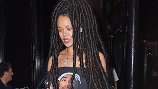 Rihanna hajával valami nagyon fura dolog történt