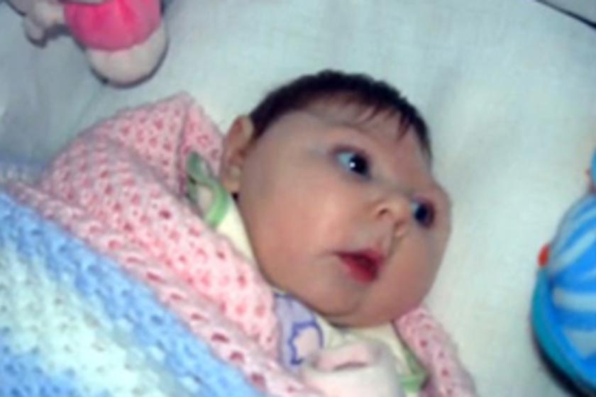 Így tüsszent a baba az anyaméhben! Csodás 4D-s videót mutatunk ... 033a1241bd
