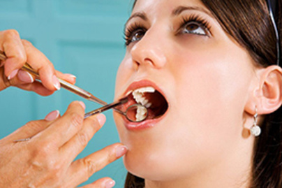 fogorvos lead