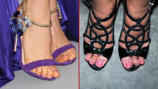 Felismeri a magyar celebnőket a lábfejükről?