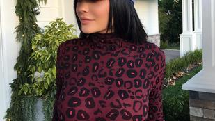 Hé, Kylie Jenner csak nem megcsináltatta a melleit?
