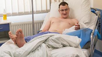 Új kezet kapott az egy karral született lengyel férfi