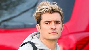 A hét kérdése: Ön szerint hogy sikerült Orlando Bloom új frizurája?