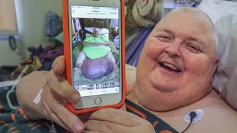 Nem elhízott, 60 kilós daganata volt