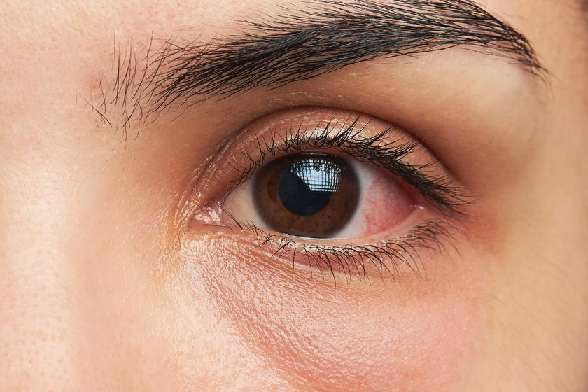 gyulladt szem