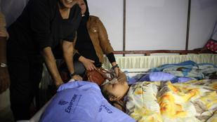 A világ legkövérebb nőjét csak daruval tudták kórházba vinni