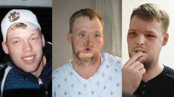 Tíz év után kapott új arcot egy amerikai férfi