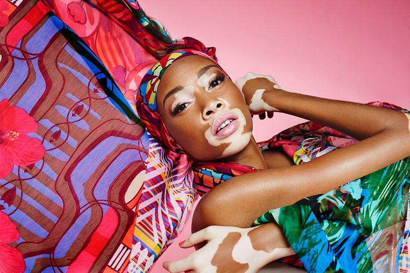 A kanadai Chantelle Brown-Young bőrén hároméves korában jelentek meg először a vitiligo pigmenthiányos foltjai. A lányt fiatalon sokat csúfolták, modellként azonban teljes karriert épített fel különleges külsejére.