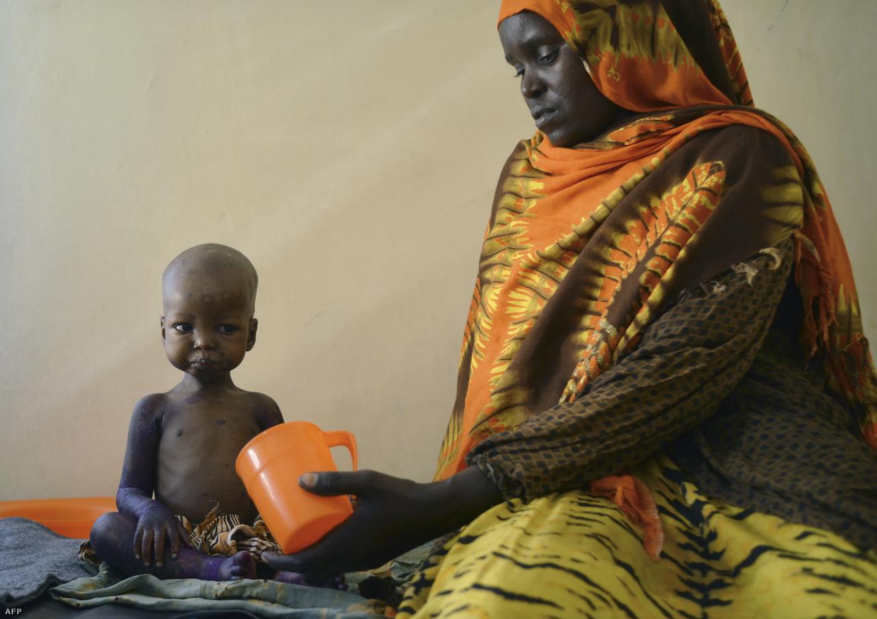 Tápszert kap az édesanyjától egy alultáplált szomáliai fiú.