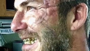 De miért néz ki úgy David Beckham, mint egy összekaszabolt arcú hajléktalan?