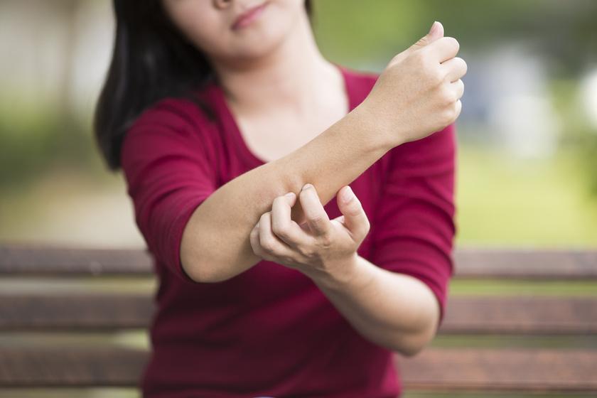 A cukorbetegség bőrtünetei az enyhétől a nagyon súlyosig. Enyhe tünet lehet például a viszketés.