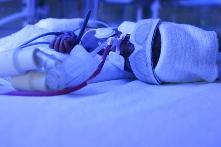 A csecsemő 3 napot élt