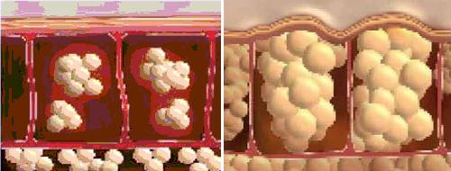 Normál bőr a dermiszben néhány zsírsejttel, és sok megduzzadt zsírsejt cellulitos bőrfelületen