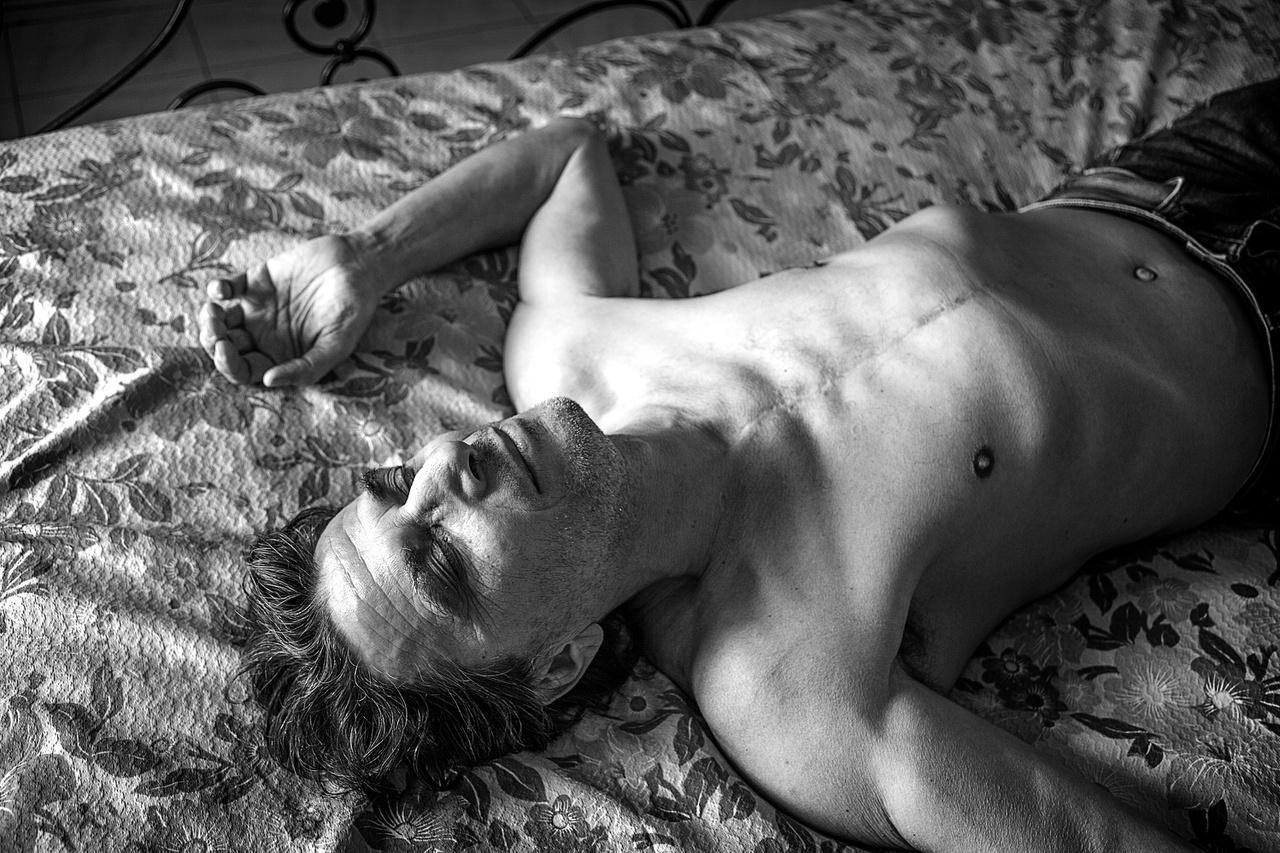 Luciano Cinci (született 1957-ben), Pomarance, Pisa megye. Az INAIL (Istituto Nazionale Assicurazione Infortuni sul Lavoro – Országos Munkahelybiztonsági Intézet) megállapította, hogy a foglalkozási ártalom nála két betegséghez vezetett: mellhártya-meszesedést és mellhártyarákot diagnosztizáltak nála. Helyzetét aortaleválás súlyosbítja, aminek következtében rendkívül nehezen tud csak lélegezni. Betegségei miatt Luciano abbahagyta a munkáját, és rokkantsági minimálnyugdíjból próbálja fenntartani magát.