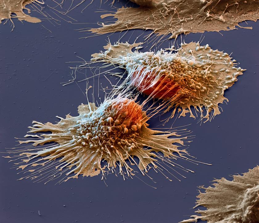 Az elektronmikroszkóp segítségével készített, megrázó hatású képen rákos sejtek látszanak.