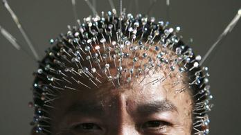 Százával hamisítják Kínában az akupunktúrával kapcsolatos kutatásokat