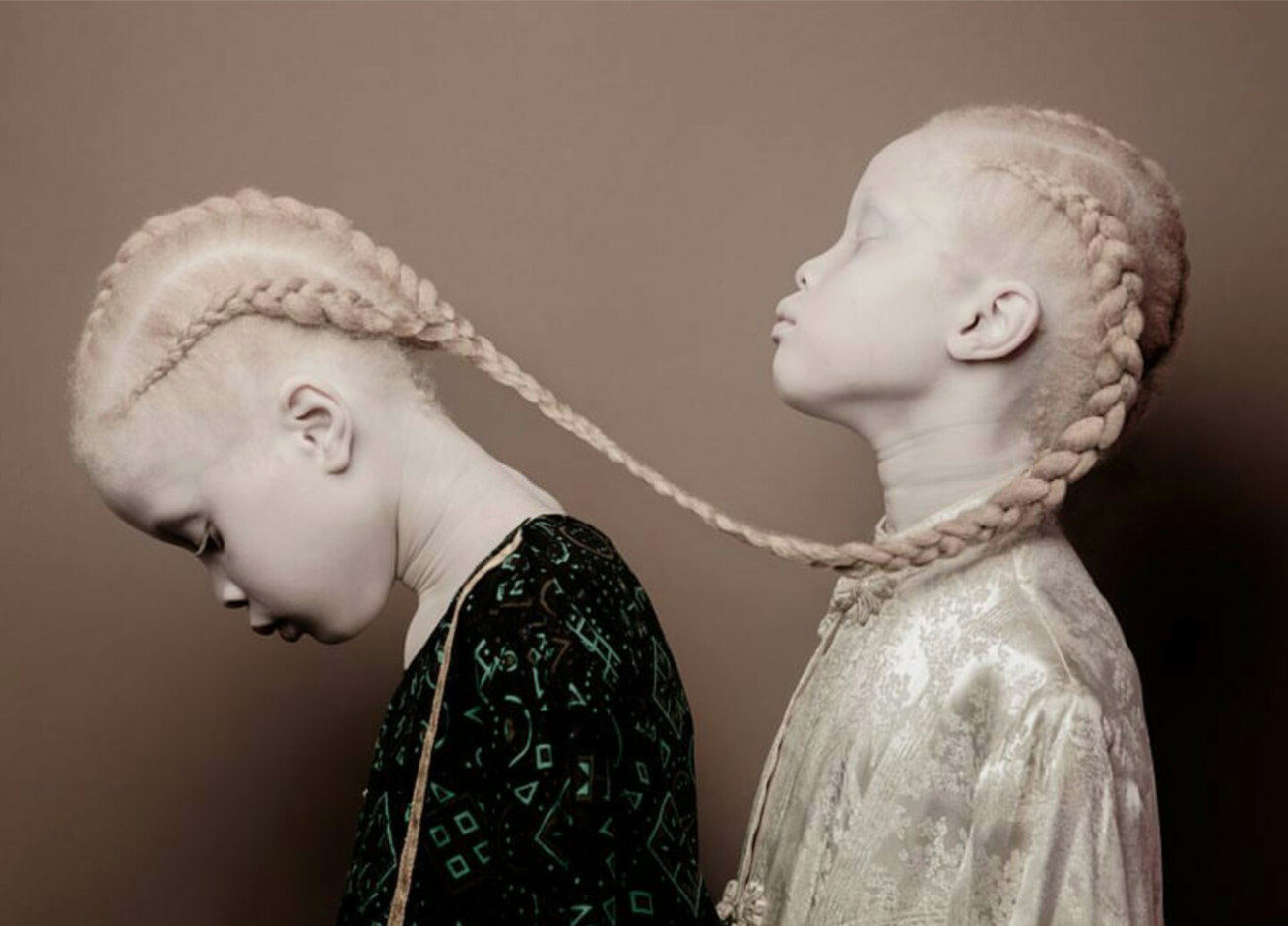 albino ikrek cover