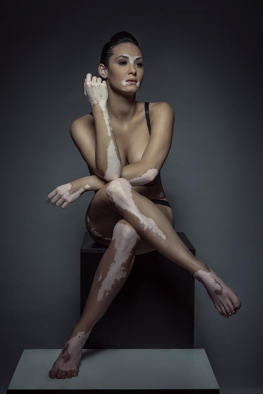 Egy egyszerű kép egy gyönyörű nőről. Bársony Bence fotója a bizonyíték: a veleszületett bőrhiba sem állhat a valódi szépség útjába.