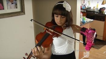 Ez a kislány robotikus művégtaggal tanul hegedülni