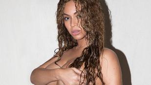 Beyoncénak még az ajkai is felfújódtak a terhességtől