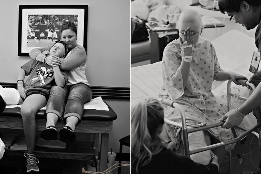 Műlábú babát kapott ajándékba az amputált lábú kislány: szívszorító, hogy mit érzett