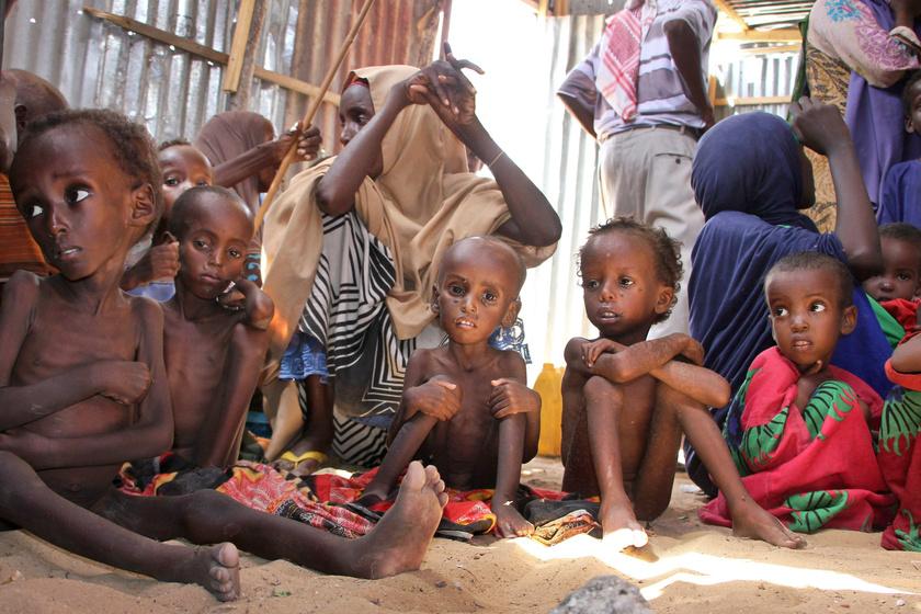 Krónikusan alultáplált szomáliai gyerekek a főváros, Mogadishu peremén létesített belső menekülttáborban.