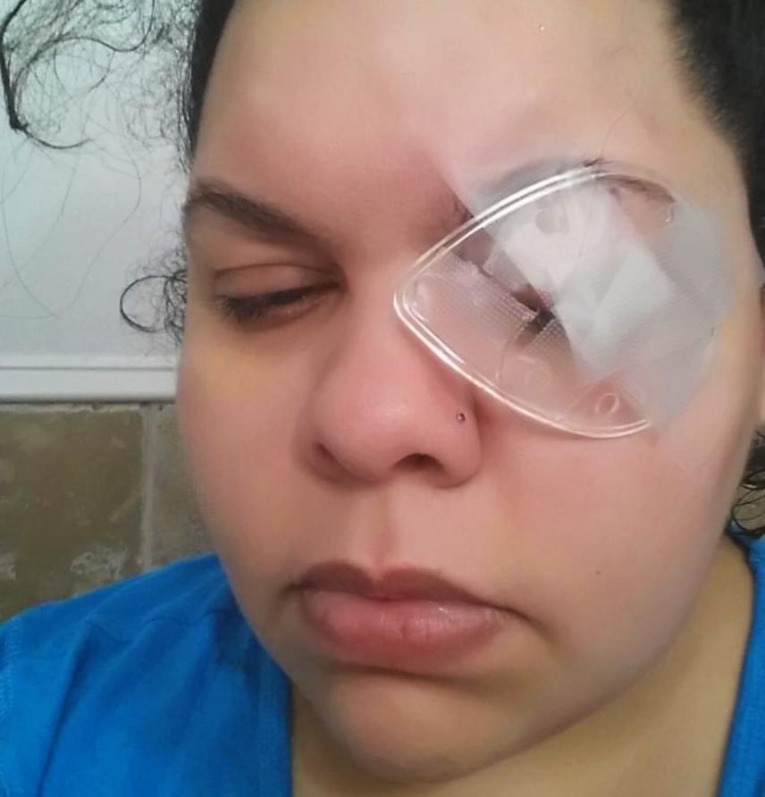 Erica Diaz egy darabka csillám miatt veszítette el a látását fél szemére, sőt, a kezelések költségei miatt komoly adóssága lett. A nő kislányával barkácsolt, amikor a csillám a szemébe került, és nem sokkal később megsértette a szaruhártyáját. Az orvosok kétszer is átültetéssel próbálkoztak, sikertelenül, míg végül - a fertőzésektől tartva - kénytelenek voltak eltávolítani Diaz szemét, aki azóta protézist visel.                         Diaz éppen ezért óva int mindenkit attól, hogy megfelelő védelem nélkül próbálja ki a csillámos tippeket, például a sziporkázó házi manikűröket. A szem környékére készülő csillámos sminkek pedig semmilyen körülmények között sem ajánlottak.