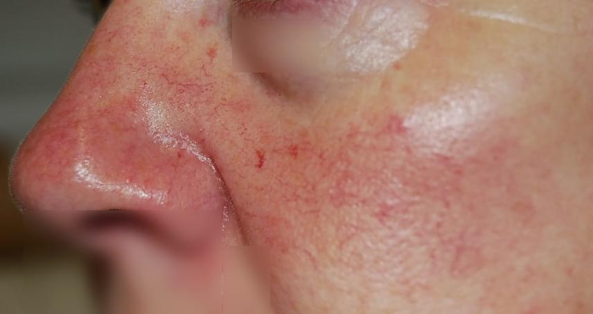 vörös foltok jelentek meg az orr arcán)