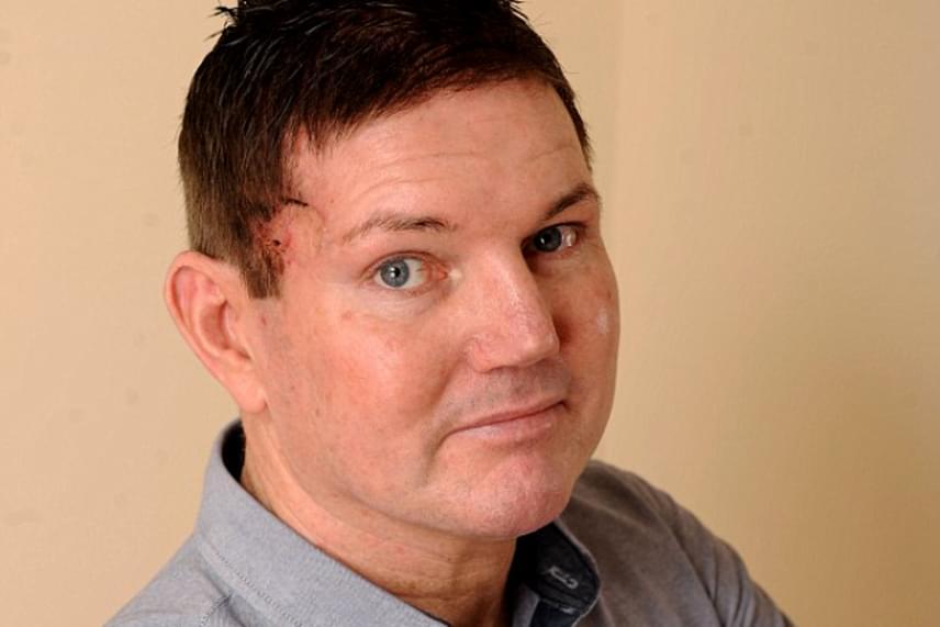 Freddie Bishop a daganat eltávolítása után