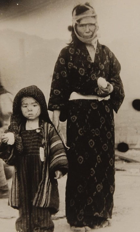 A pusztító csapást túlélő anya áll gyermeke mellett. A nagaszaki bombázásnak 60-80 ezer, többségében civil áldozata volt: az emberek fele a robbantás napján hunyt el, a következő hónapokban azonban az égési sérülések és a sugárbetegségek is ugyanennyi életet követeltek.