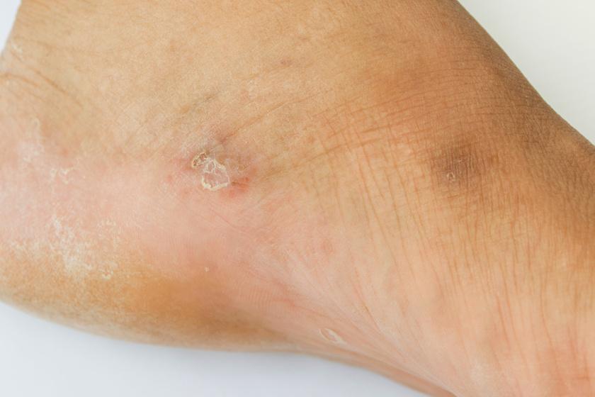 A lábgomba egyik legelső jele, ha apró, hámló, piros, esetleg viszkető folt jelenik meg a lábon.
