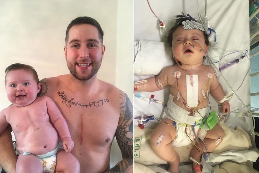 Richard a műtétet követően elkészíttette a mély, szimbolikus értelmű tetoválást. Ezzel jelezte, fiával volt, és lesz mindig, bármi történik is, és iránta érzett szeretete határtalan.