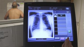 32 ezer halál lett volna elkerülhető egy jobb egészségügyi rendszerrel